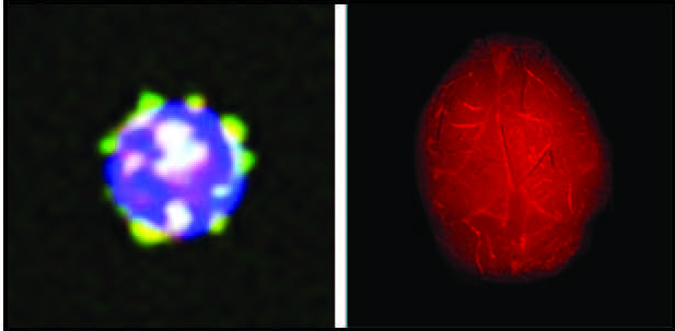 Left: T and B cells are types of white blood cells that develop from stem cells (progenitor cells) in the bone marrow. When HDL (good cholesterol) containing the protein ApoM (in yellow) binds to the surface of their progenitor cells, it prevents them from proliferating. Right: Mice that lack the ApoM protein on their HDL develop more severe brain inflammation in a mouse model of multiple sclerosis. This inflammation is illustrated by leakage of a red fluorescent dye from blood vessels into the brain. Image