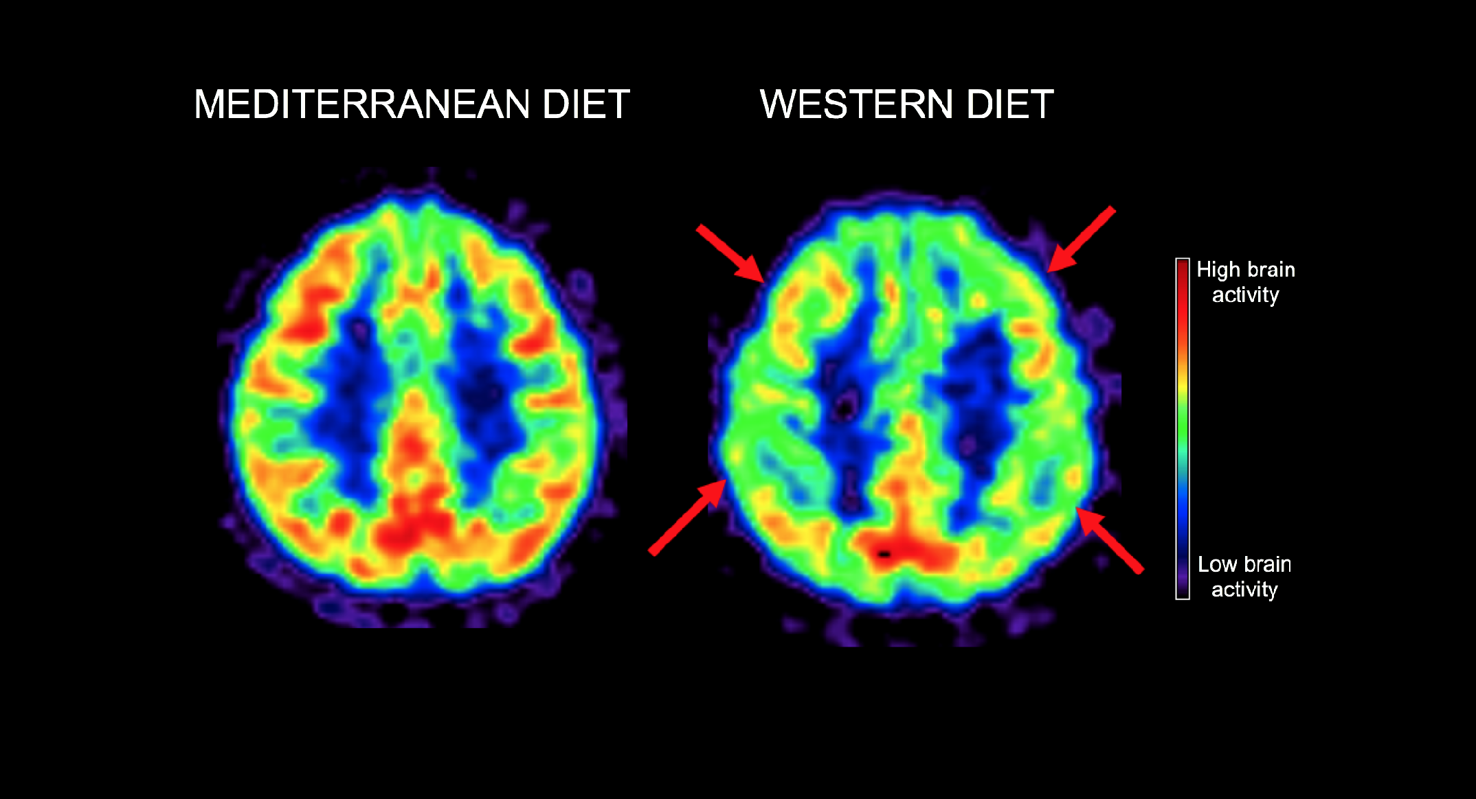 can you repair brain shrinkage with diet