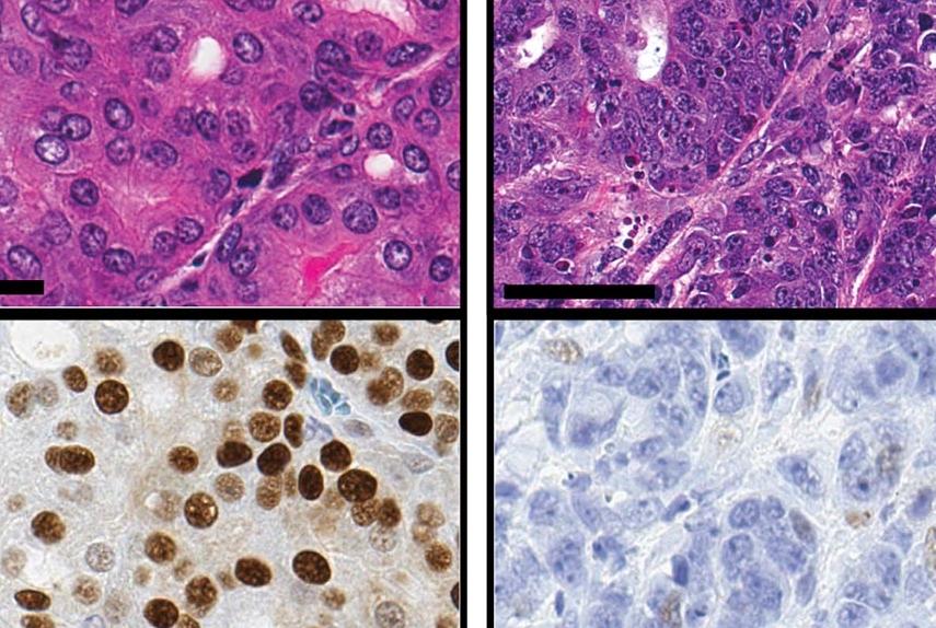 Tumor Region