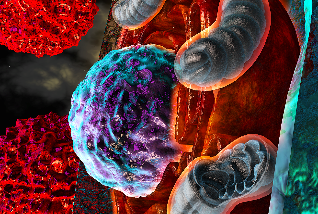 "In this illustrated model, T cells afflicted by harsh conditions inside the tumor experience endoplasmic reticulum (ER) stress, symbolized here by the ""burning"" ER (orange) surrounding the nucleus (purple and turquoise). Severe ER stress responses driven by IRE1a-XBP1 pathway signaling alter the function of mitochondria (blue-gray) and consequently limit optimal T cell responses to cancer cells (red)."