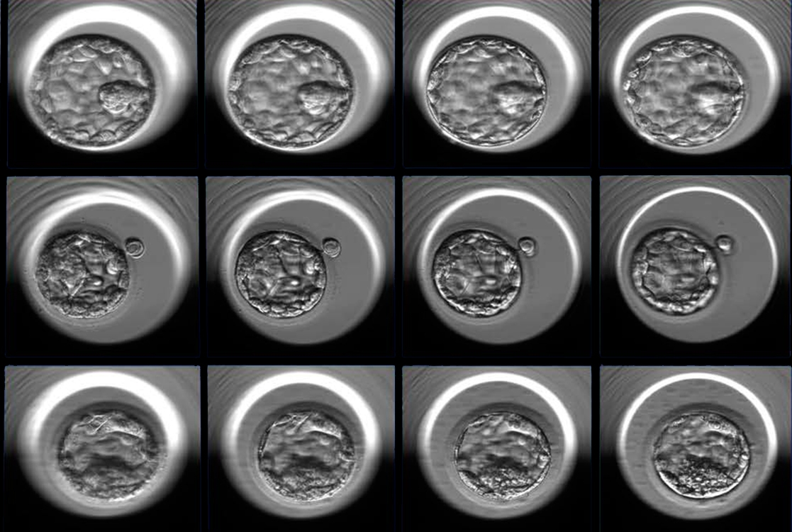 Three examples of human embryos at the blastocyst stage photographed at multiple focal depths (four of seven focal planes shown here, from left to right). The embryos represent good (top), fair (middle) and poor quality (bottom) as designated by the embryologists' grading system and additional statistical analysis.
