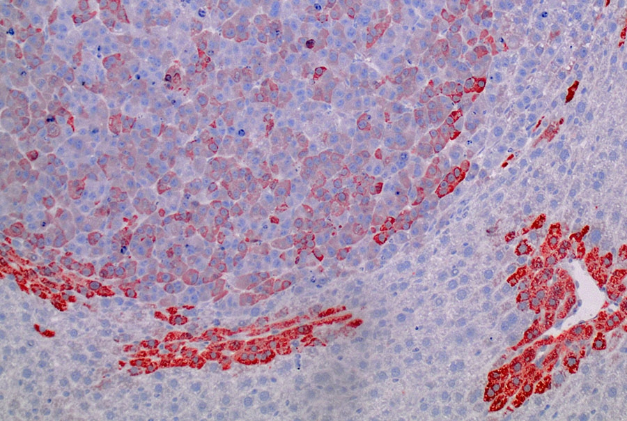 Image shows a common form of liver cancer, called hepatocellular carcinoma, produced in mice following the introduction of a tumor-causing mutation in the beta-catenin gene by CRISPR base editing. The staining shows expression of a gene (Glutamine Synthetase) that is activated by mutant beta-catenin in tumors.