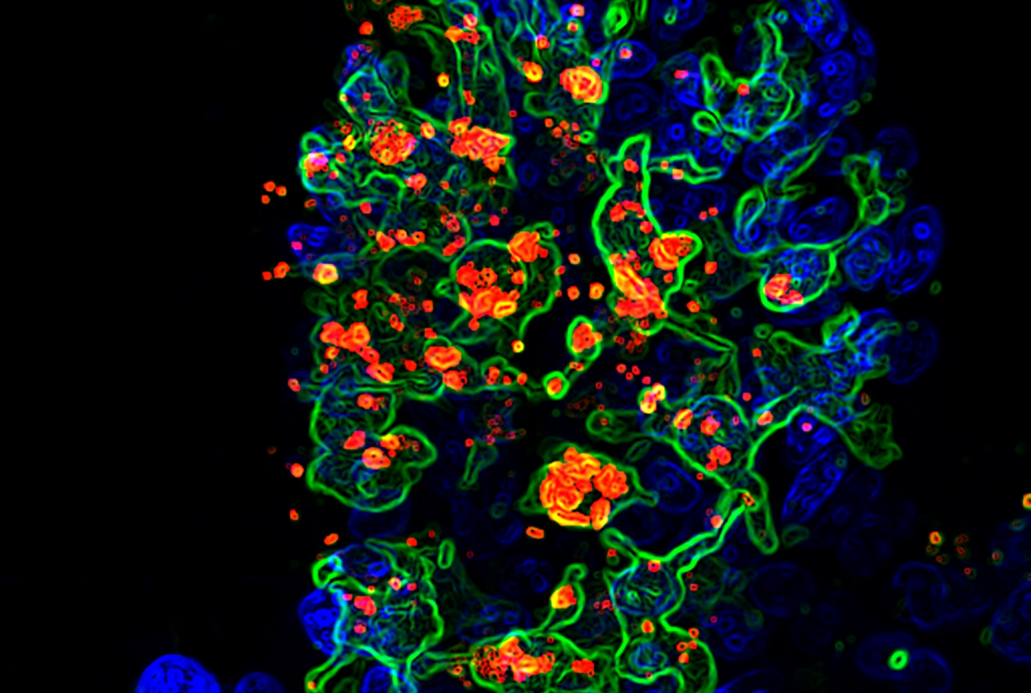 Opportunistic fungus called candida albicans (red) engulfed by CX3CR1+ phagocytes (green) in the gut villi (blue).Photo credit: Dr. Iliyan D. Iliev and Dr. Irina Leoanrdi.