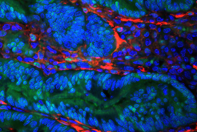 Research Reveals Why Some Tumors Have Different Makeup of Cells