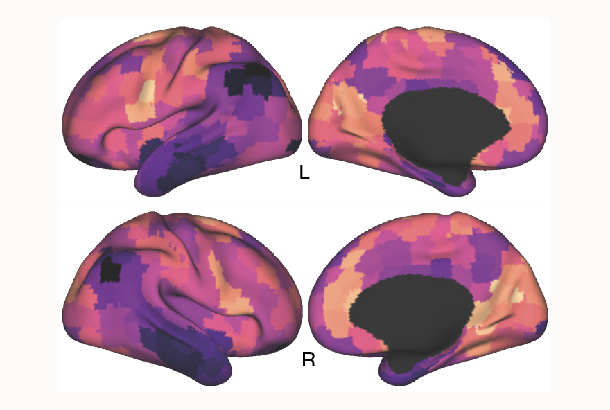 brain images with color waves