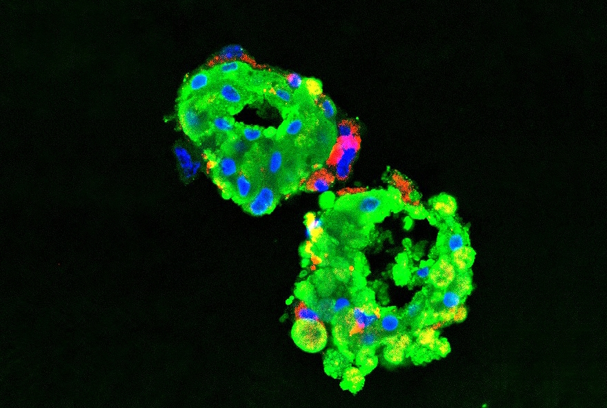 organoids under a microscope