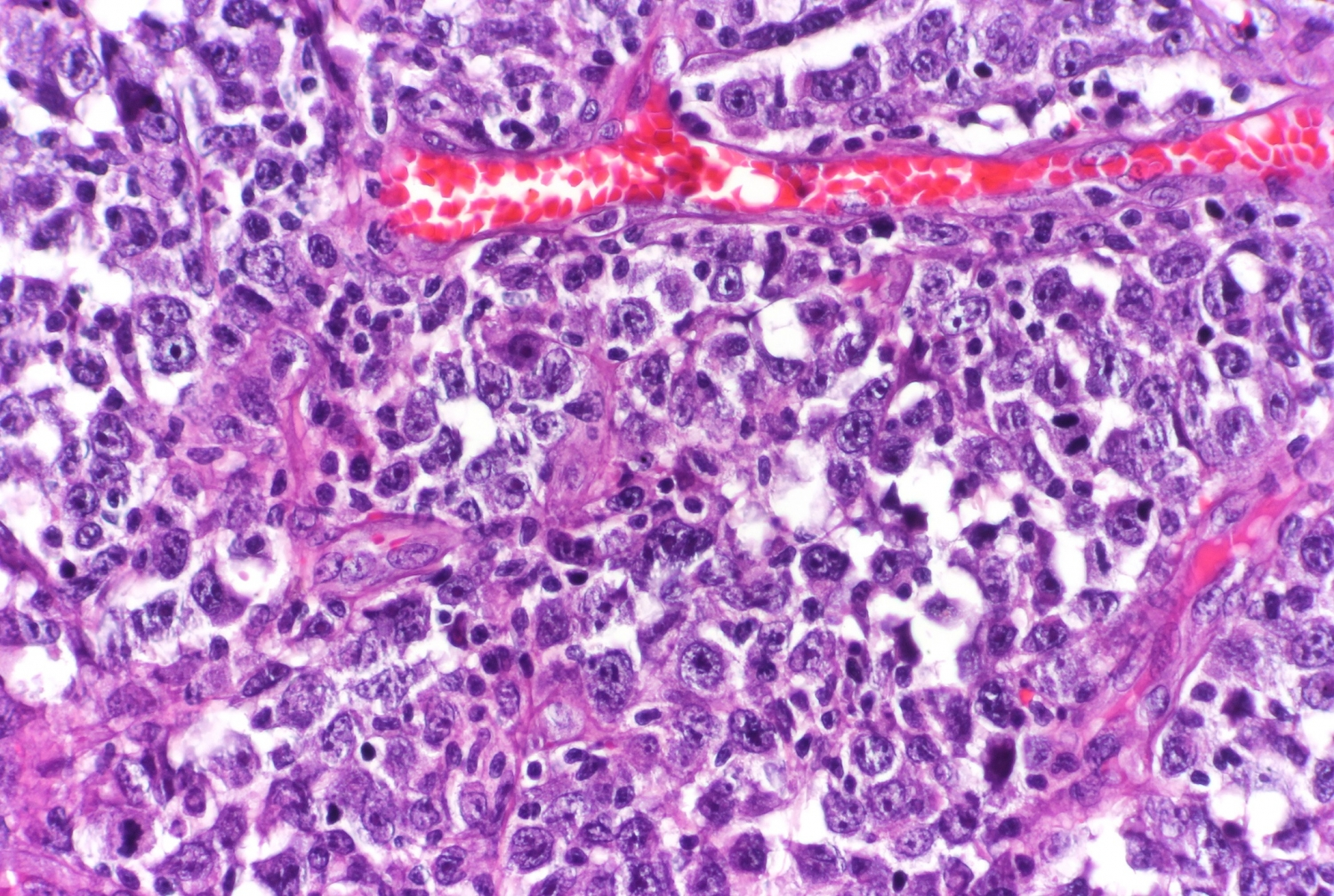 lymphoma cell