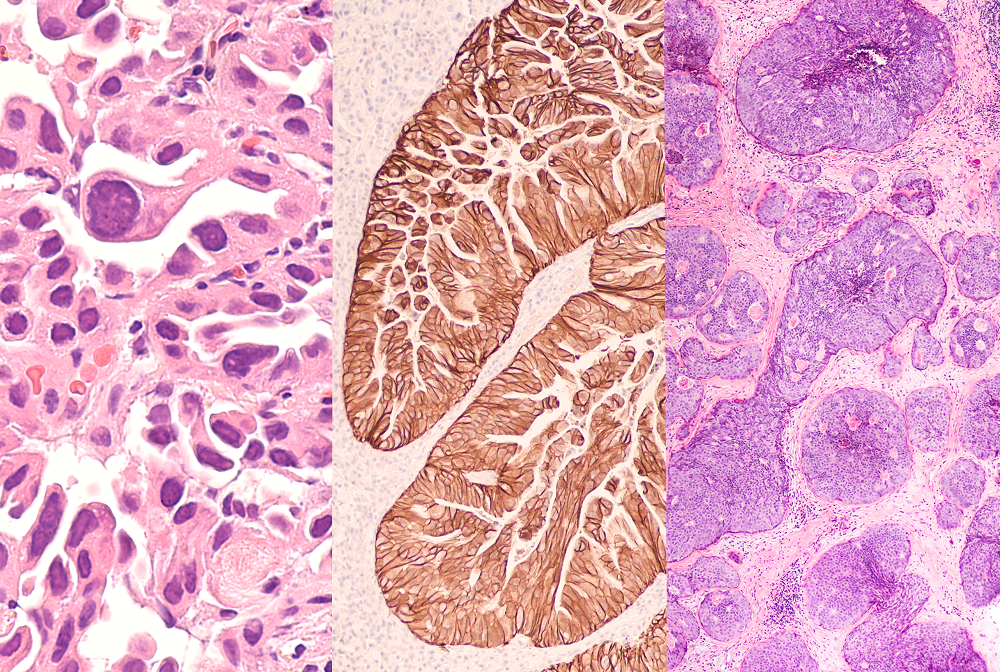 Cells from (left to right) lung cancer, gastric cancer and breast cancer.