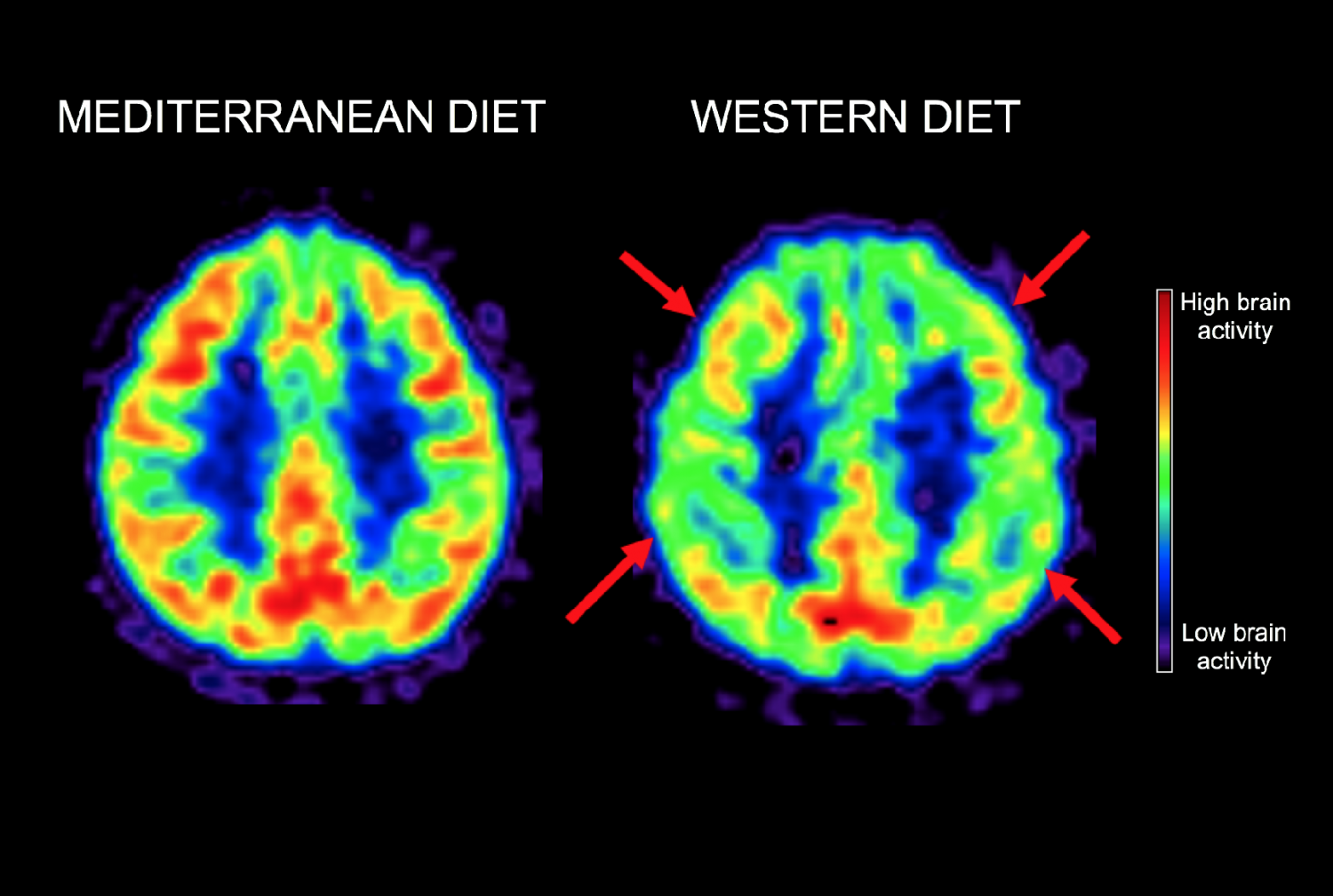 PET scan that shows the brain activity of a 50-year-old woman on a Mediterranean-style diet and of a 50-year-old woman who's followed a Western diet most of her life