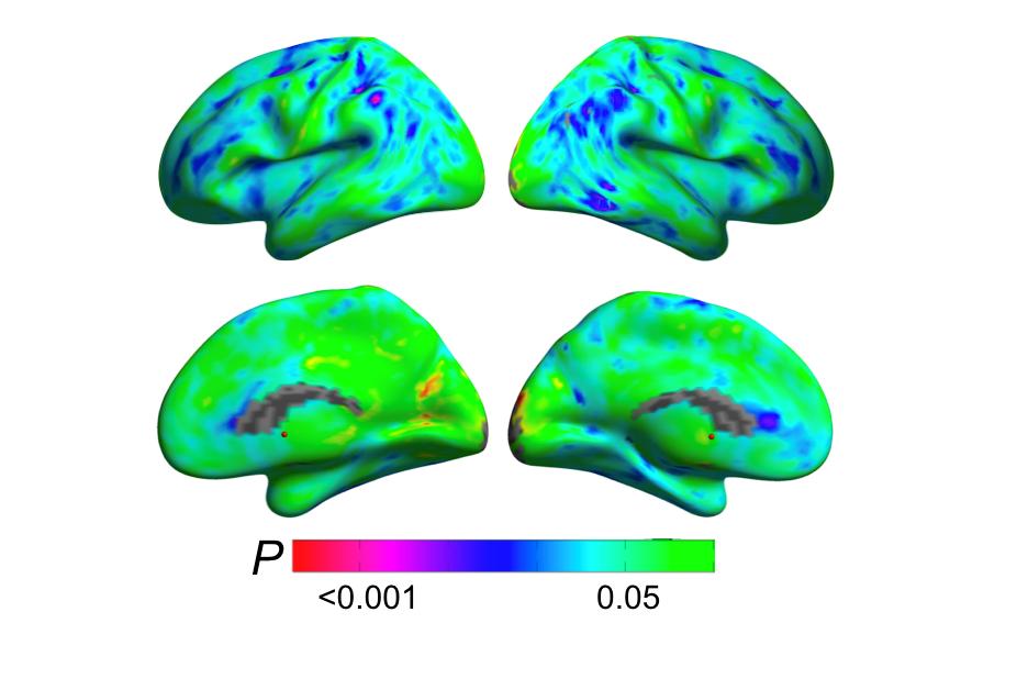 brain regions showing menopause transition