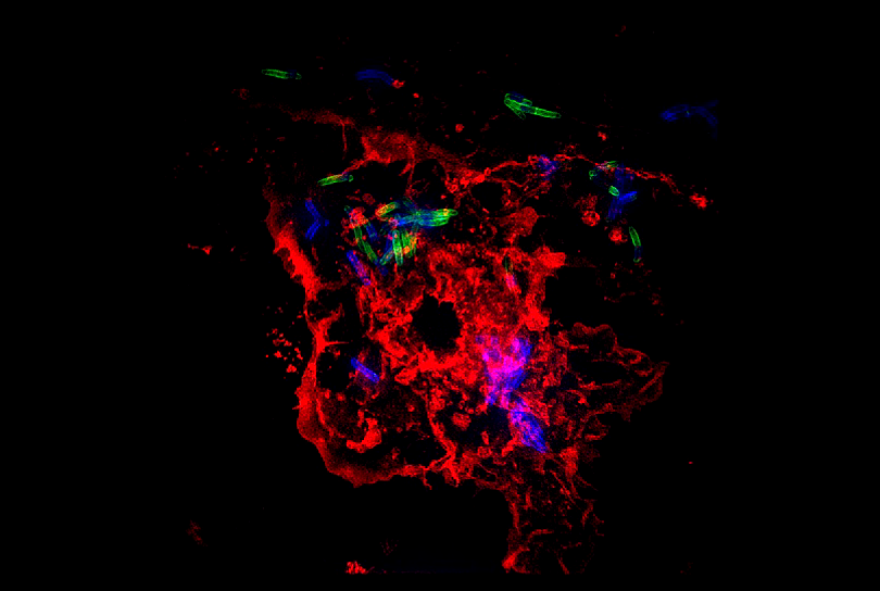 Image shows macrophages (red), a type of white blood cell, infected with Mycobacterium tuberculosis (green and blue). Photo credit: Dr. Helene Botella, an instructor in microbiology and immunology at Weill Cornell Medicine.