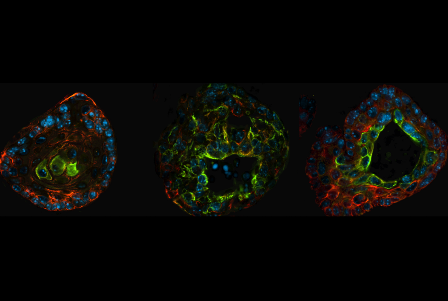 Prostate organoids from genetically engineered mouse models. Image credit: Mirjam Blattner and Dennis Huang