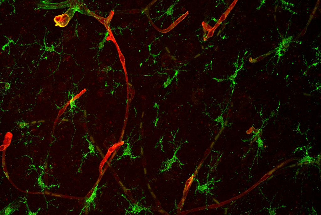 Scientists Identify Protein That Promotes Brain Metastasis