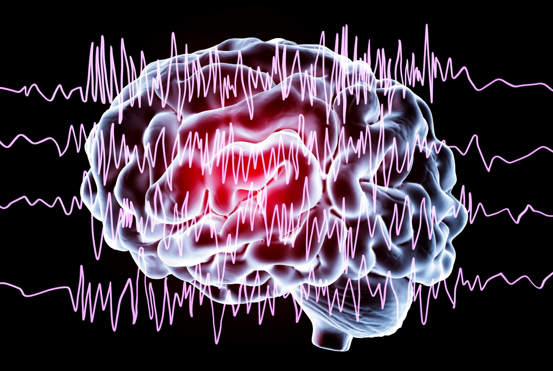 Epilepsy awareness concept.