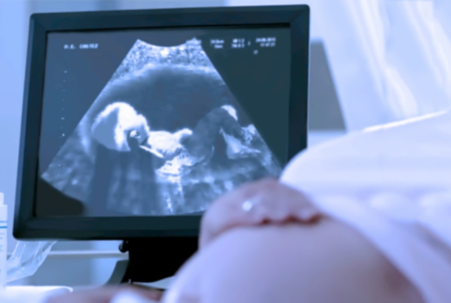 Pregnant woman having a ultrasound scan