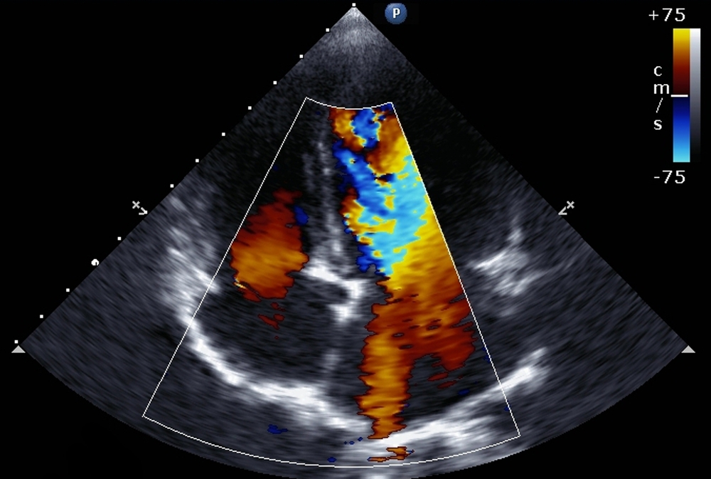 image of transthoracic two-dimensional color Doppler echocardiography