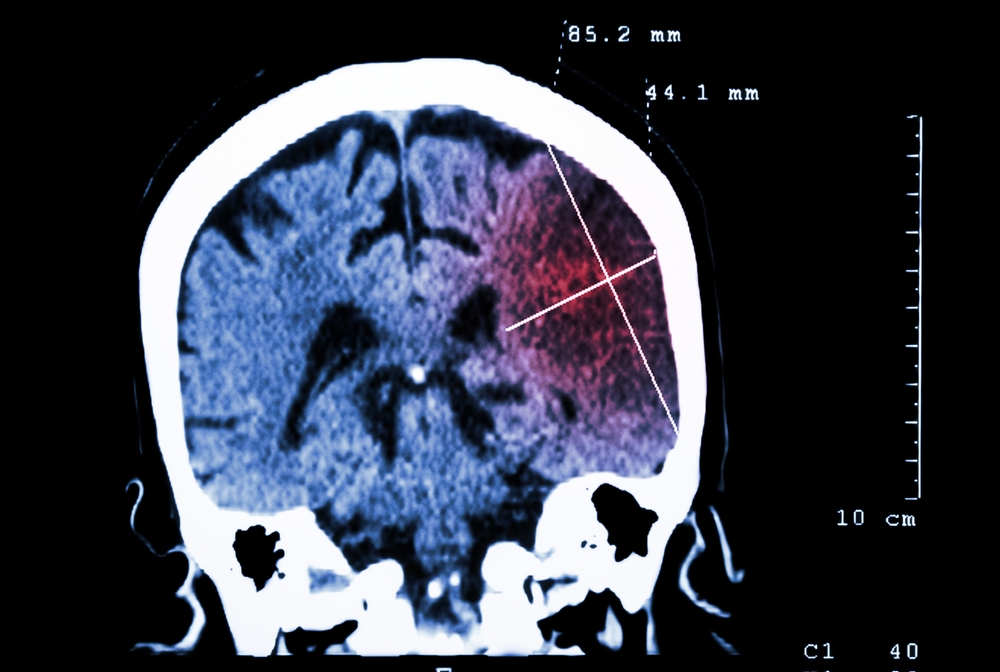 brain scan of a stroke patient