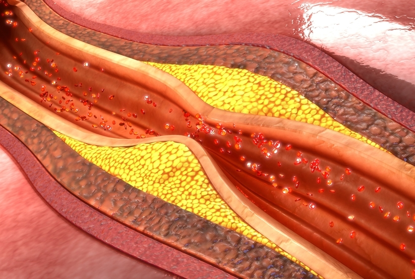 blood artery