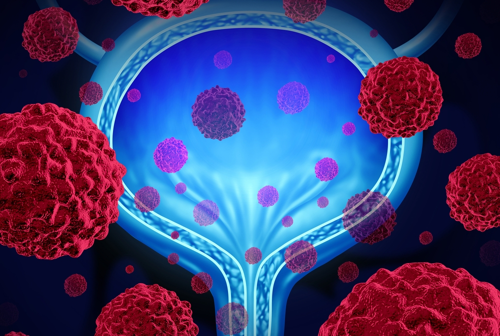 digital illustration of bladder cancer