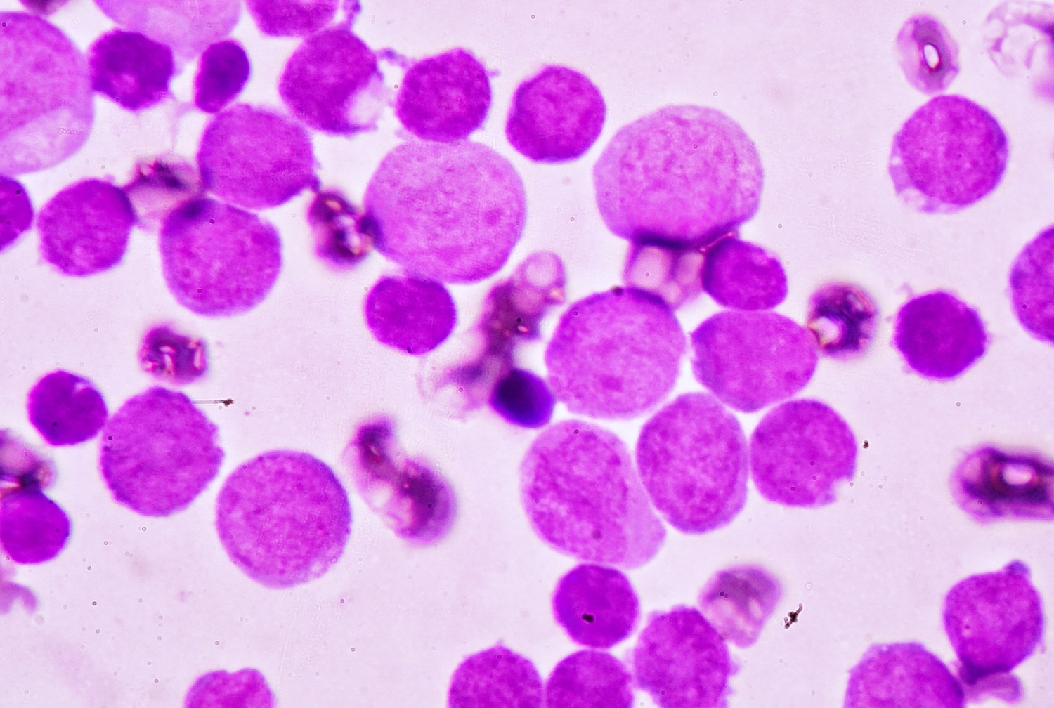 Blood smear under microscopy showing adult acute myeloid leukemia.