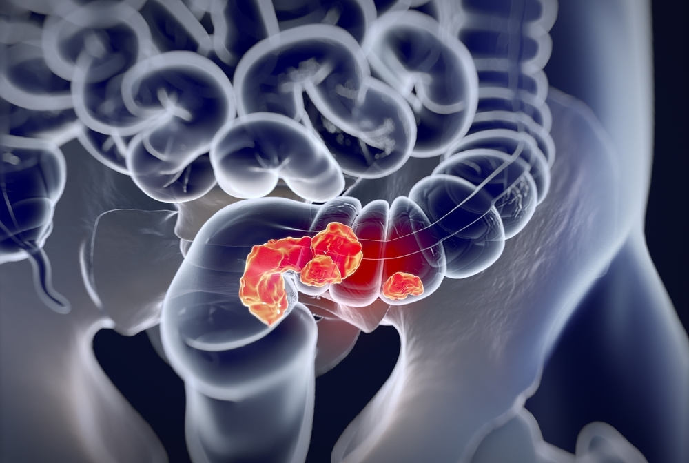 stock image of the colon