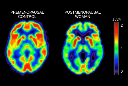 Menopause Triggers Metabolic Changes In Brain That May