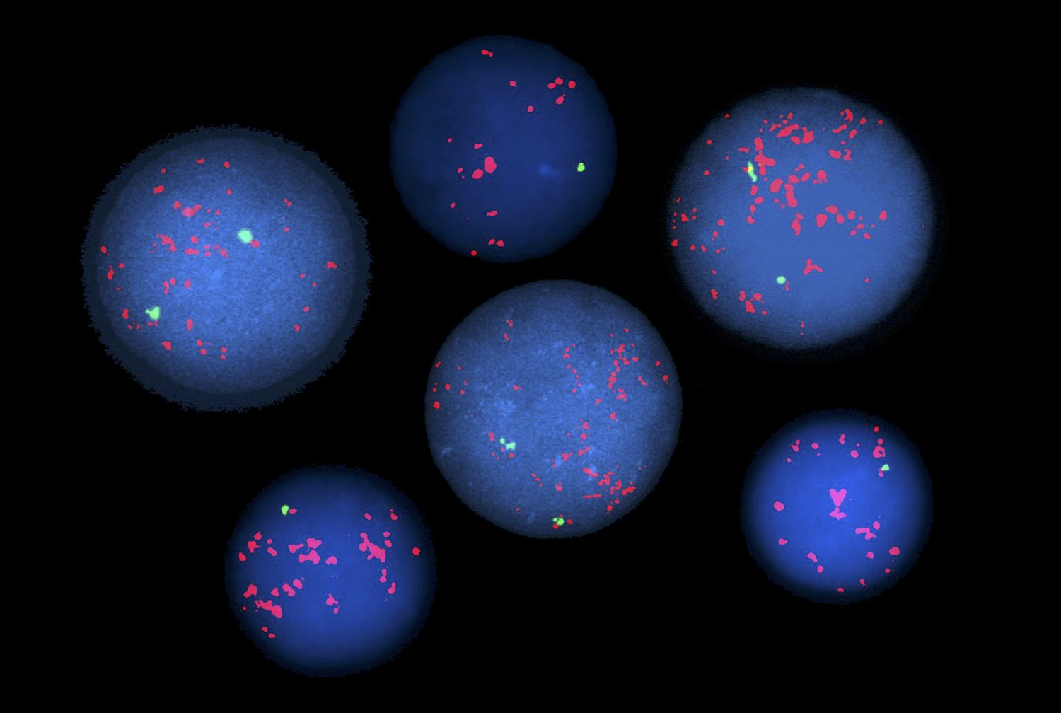 Image shows fluorescent chromosome staining revealing genetic abnormalities in blood cells. Photo credit: Dr. Susan Mathew