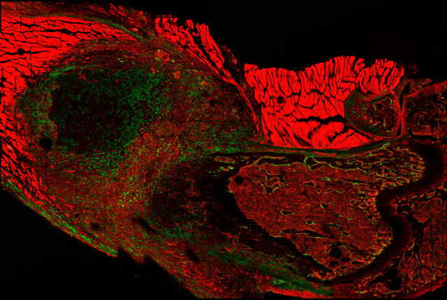 Massive expansion of periosteal stem cells (green) is seen 6 days after fracture by microscopy.