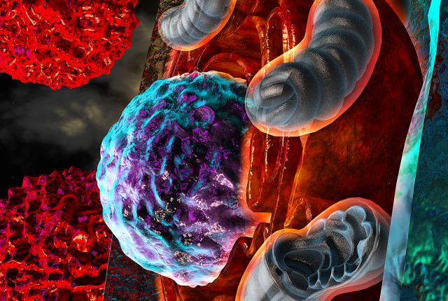 """In this illustrated model, T cells afflicted by harsh conditions inside the tumor experience endoplasmic reticulum (ER) stress, symbolized here by the """"burning"""" ER (orange) surrounding the nucleus (purple and turquoise). Severe ER stress responses driven by IRE1a-XBP1 pathway signaling alter the function of mitochondria (blue-gray) and consequently limit optimal T cell responses to cancer cells (red)."""