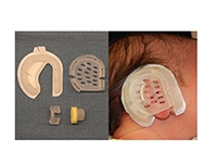 The EarWell Infant Ear Correction System