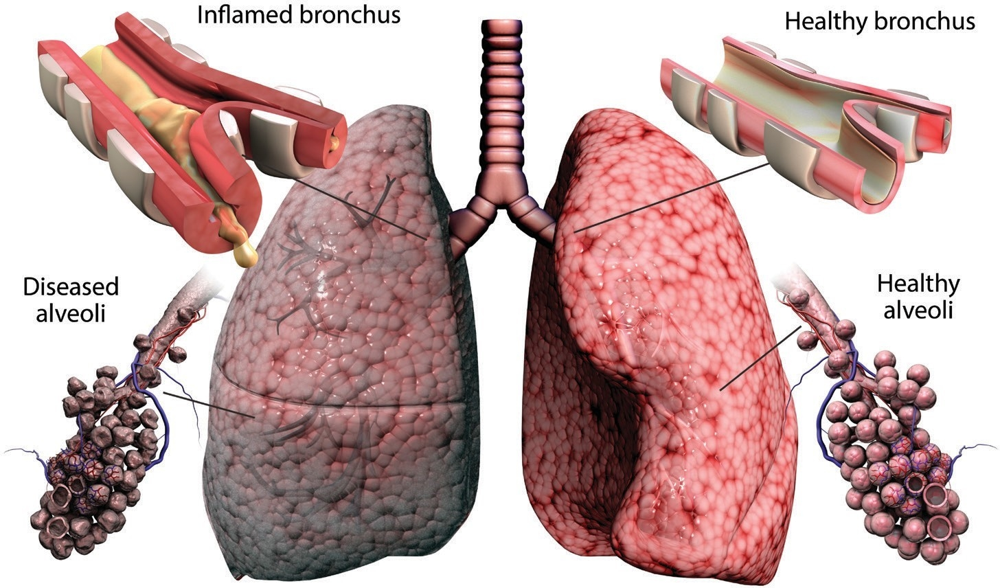 BREATHING PROBLEMS: An illustration of a lung with (left) and without COPD. Photo: Gunilla Elam/Science Photo Library