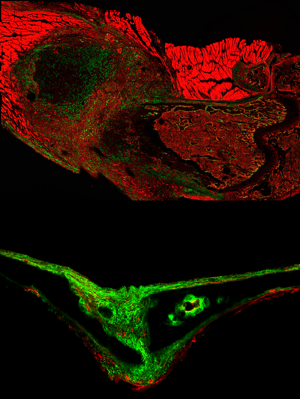 Bone Deep: A microscopy image taken six days after a fracture (top) shows an expansion of periosteal stem cells (show in green). Above: That same type of cell as seen in the skull of a 15-day-old mouse.