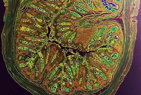 intestinal tissue damage of intestinal inflammation