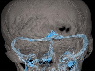 Venous Stenting Procedure Found to Improve Head Pressure and