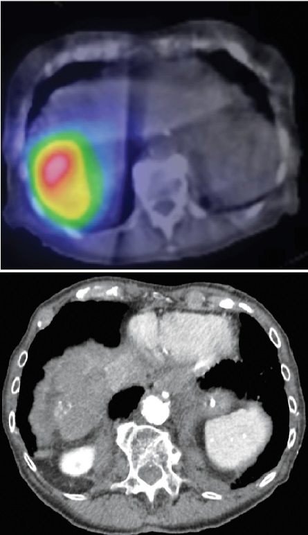 Imaging after Bloome's procedure (top) shows radioactivity at the site of her tumor; (left) four years after the treatment, only a small area of calcification remained. Opposite page: Bloome (right) at home during her twice-weekly physical therapy session