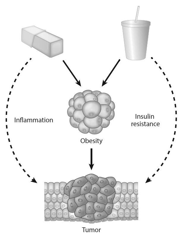 VICIOUS CYCLE: An illustration of how fatty and sugary foods, such as butter and soda, can fuel obesity, inflammation and insulin resistance—potentially feeding cancers