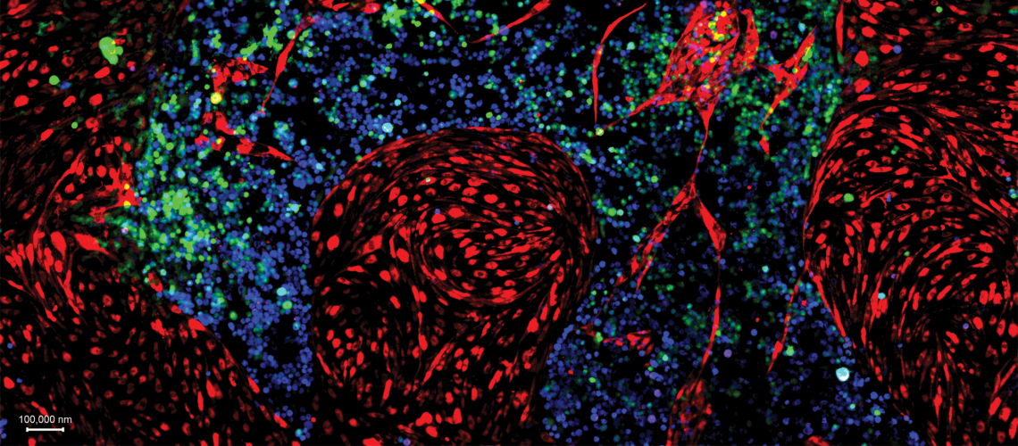 Reprogrammed blood stem cells (depicted in green and blue) expanding on top of their vascular niche (in red).